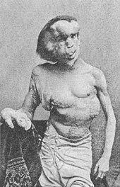 Merrick torse nu, de face, le bras droit reposant sur le rebord d'une table