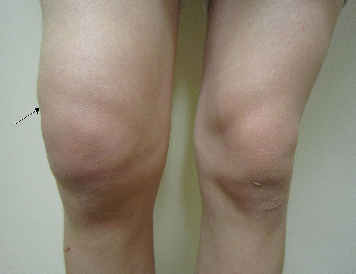 Is Osteoarthritis Genetic