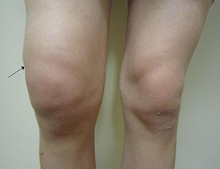Knee effusion mild knee joint effusion
