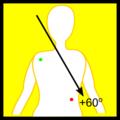 Lead II (ECG).png