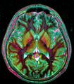 Max contrast Brain MRI 131058 rgbcb.png
