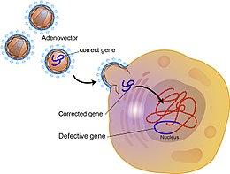 Génterápia – Wikipédia