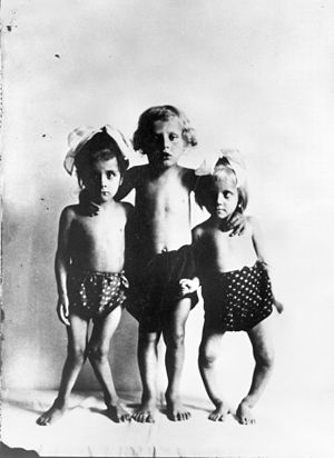 Vitamin D deficiency in Australia - Photograph of children with rickets