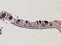 Pleioplana atomata (YPM IZ 073711) 24.jpeg