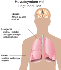 ont i lungorna ryggen