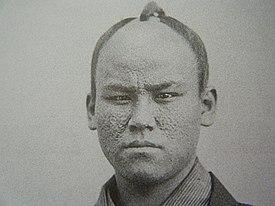 天然痘によってあばた面となった塩田三郎(1864年撮影)