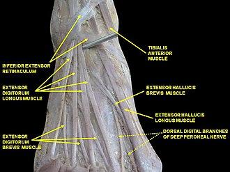 Inferior extensor retinaculum of foot - Image: Slide 2ALE