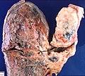 Small cell carcinoma (3922610419).jpg
