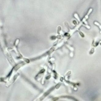 Trichophyton rubrum - Microconidia of T. rubrum