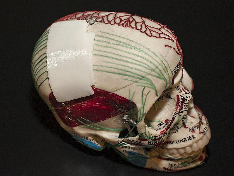 File:3-D Printed Skull Plate (5255) (18492487005).jpg