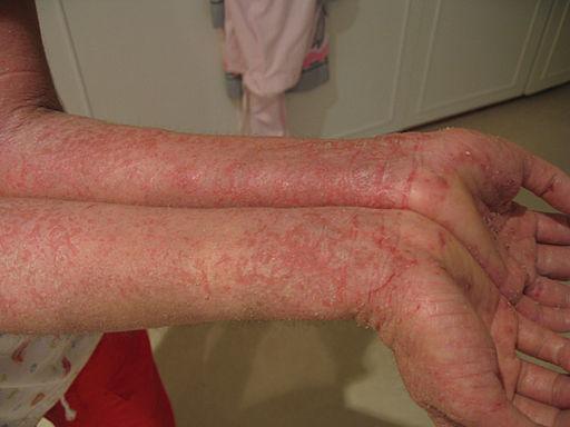 520 Eczema