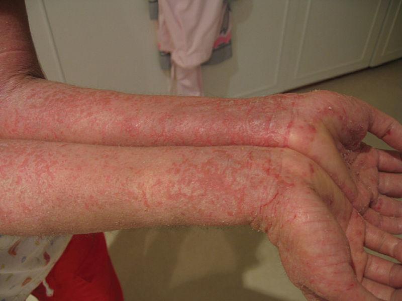 File:520 Eczema.jpg