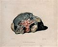 A diseased lung. Colour mezzotint by W. Say after F. R. Say Wellcome V0009756.jpg