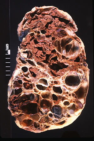 Adult Polycystic Kidney.jpg