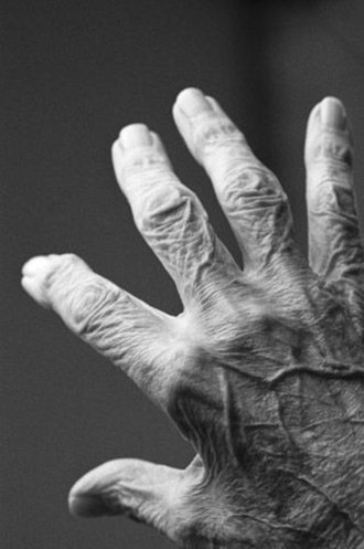 Gerontology - The hand of an older adult