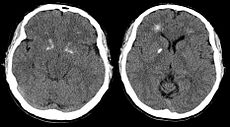 Brain computer tomography cuts of the patient with 22q11.2 syndrome, demonstrating basal ganglia and periventricular calcification.jpg
