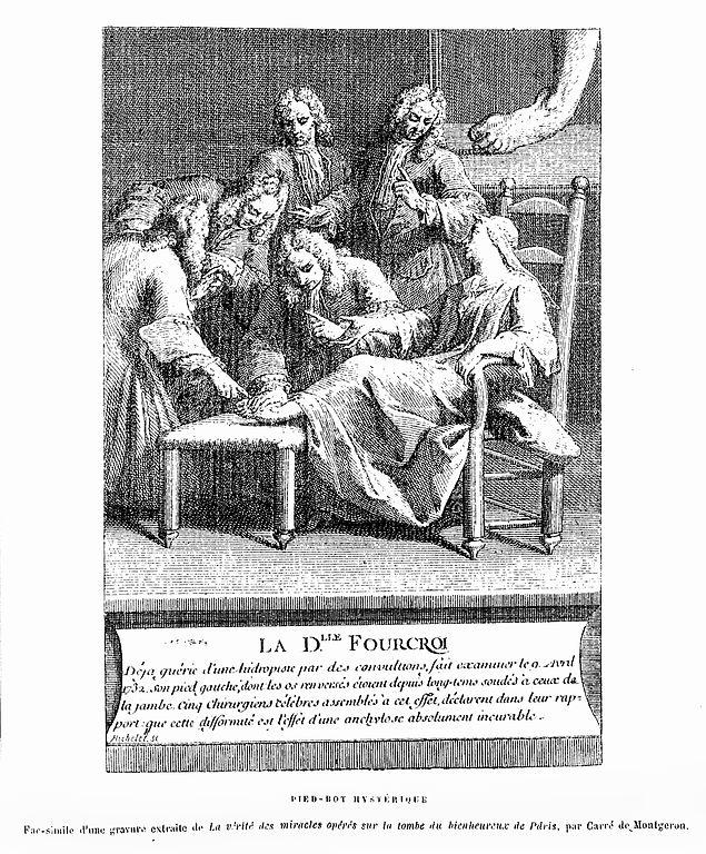 Filecharcot Hysterical Club Foot Contraction Wellcome