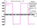 Deuxième ordre du type réponse en uL d'un R L C série comme double-dérivateur d'un biparabolique - tetra.png