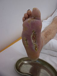 Diabetic foot syndrome.JPG