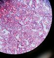 Gram Negative Bacilli.png