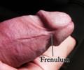 Human penis frenulum.png