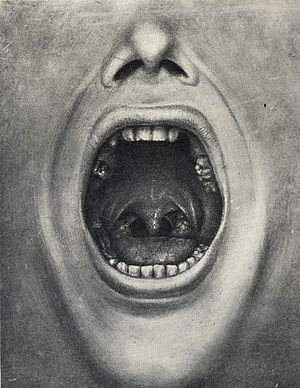 Henry Cotton (doctor) - Illustration of a mouth with teeth removed from Cotton's book The defective delinquent and insane: the relation of focal infections to their causation, treatment and prevention.