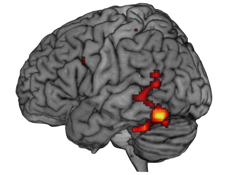 File:Kognitionsvidenskab hjerne.001.png
