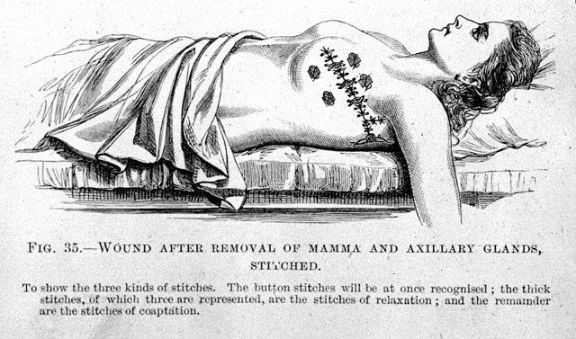 李斯特時代的乳房切除手術縫合方式。