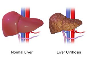 Cirrhosis - Wikipedia