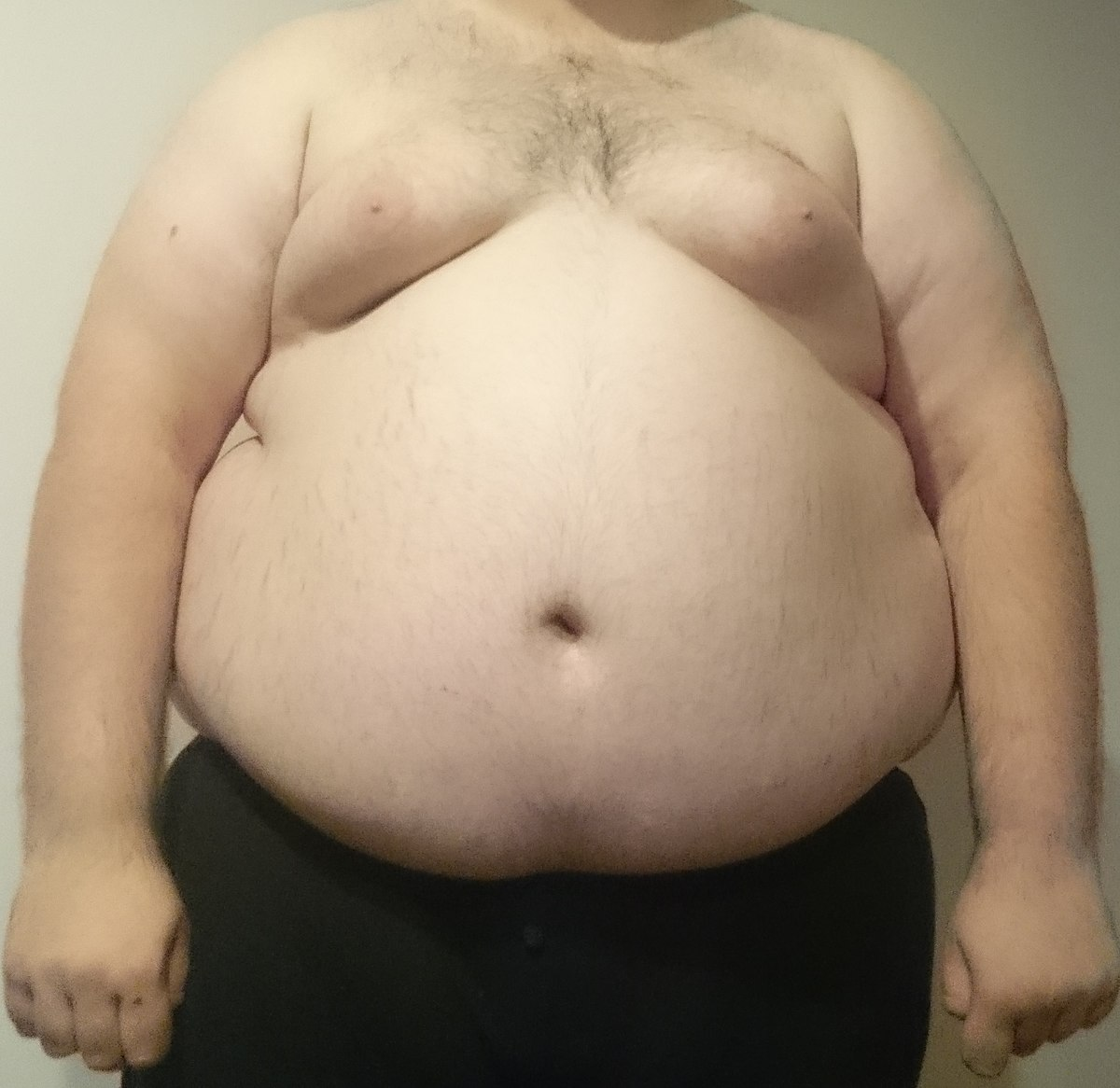personne obese