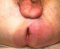 Perianal abscess
