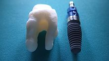 Root Analogue Dental Implant