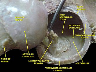 Ligament of head of femur - Image: Slide 2DADA