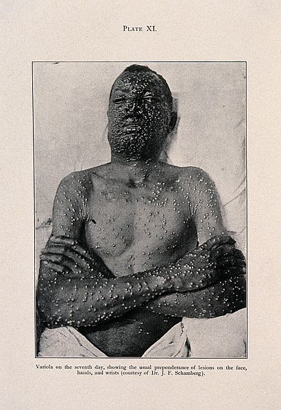 File:Smallpox; lesions on face, trunk and arms, c 1905 Wellcome V0010347EL.jpg