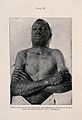 Smallpox; lesions on face, trunk and arms, c 1905 Wellcome V0010347EL.jpg