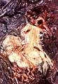 Squamous cell carcinoma (3923395558).jpg