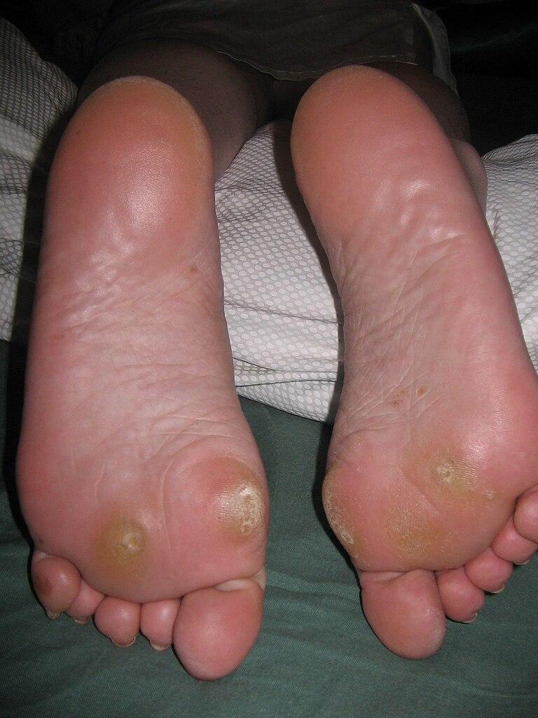Le psoriasis quel diagnostic