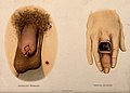 A diseased penis and top of the thigh with a patch of skin d Wellcome V0010267.jpg