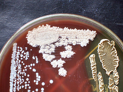 Bacillus sps various types blood agar.jpg