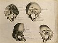 Bones of the skull; four figures. Ink and watercolour, after Wellcome V0008218.jpg