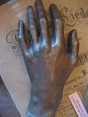 Postmortem cast of Chopin's left hand