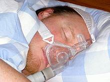 oxylife sleep apnea bc