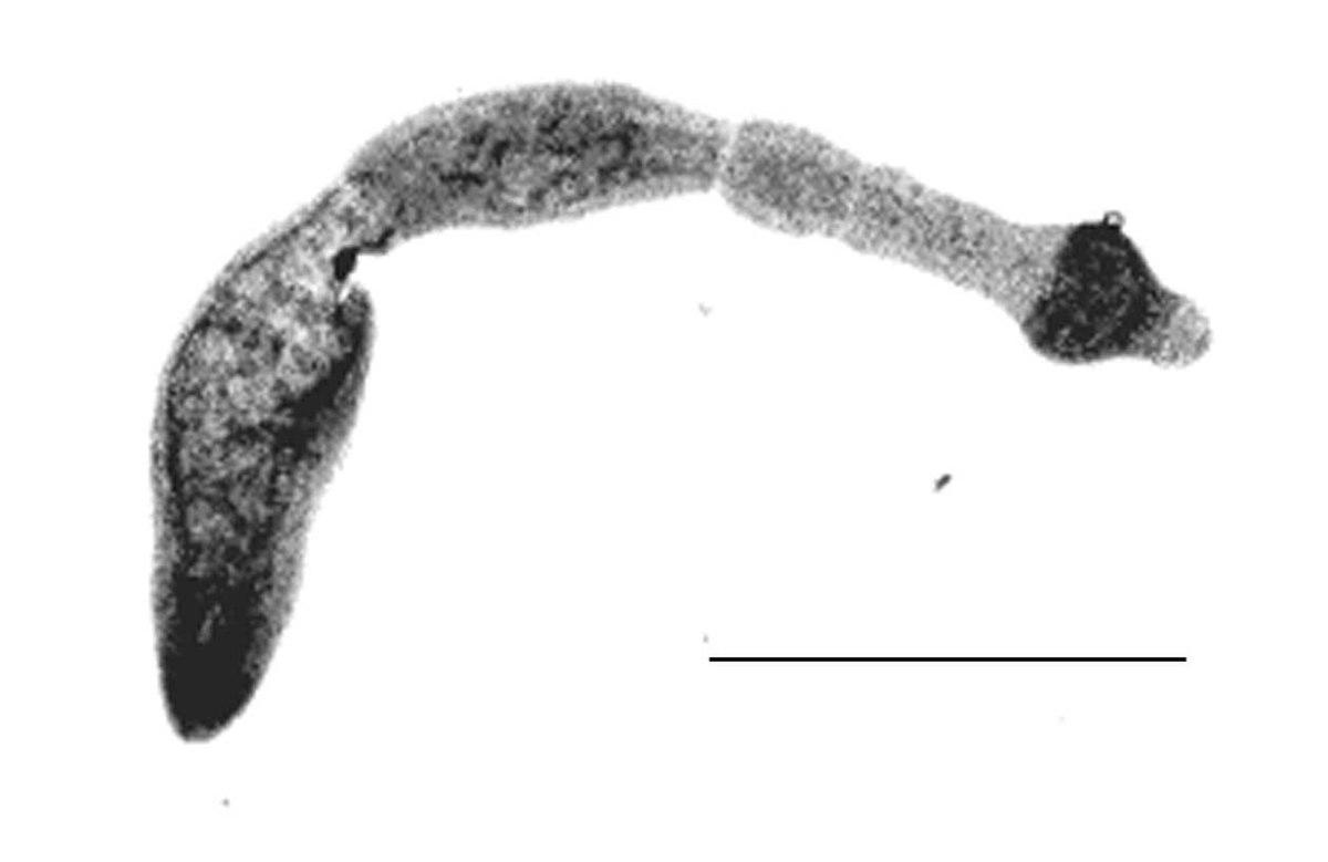 worm infestation wikipedia