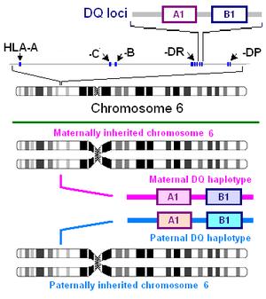 HLA-DQ2 - Illustration of DQ antigen genetics, click image for details