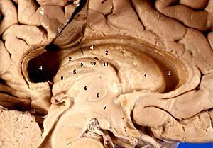 Human brain left dissected midsagittal view