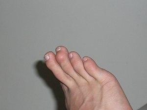 Bending Little Finger Qihrour Ring Pain