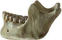 Human jawbone left.jpg