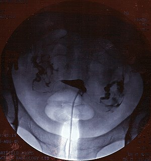 A hysterosalpingogram. Note the catheter enter...