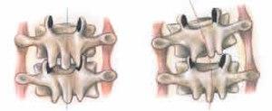 Intertransversarii - Intertransversarii muscles