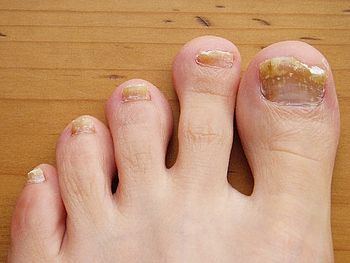 English: Nail Fungus / Toe Nail Fungus Deutsch...